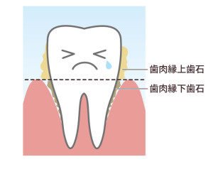 Read more about the article 歯石の話